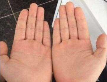 手指头又短又粗的人