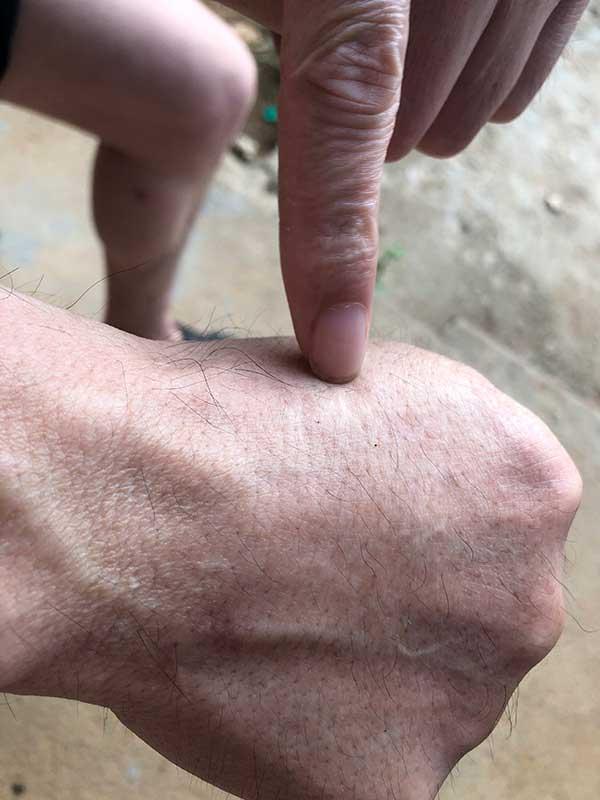 张玉环向澎湃新闻展示手上被打留下的伤疤。